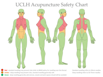 UCLH-Acupuncture-Safety-Chart-narrative-2