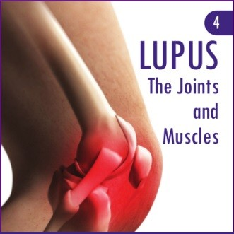 Updated LUPUS UK Publications