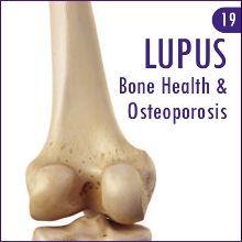 A new addition to the LUPUS UK range of publications